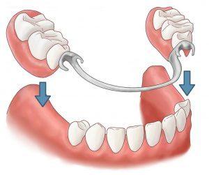 Les Prothèses Amovibles (dentier partiel et complet)