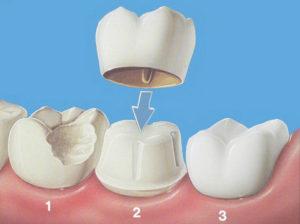 Qu'est-ce qu'une couronne dentaire?