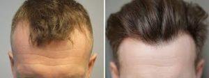 Greffe de cheveux avant après
